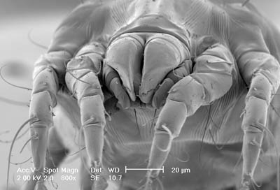 Environmental Control of House Dust Mites: Homepage