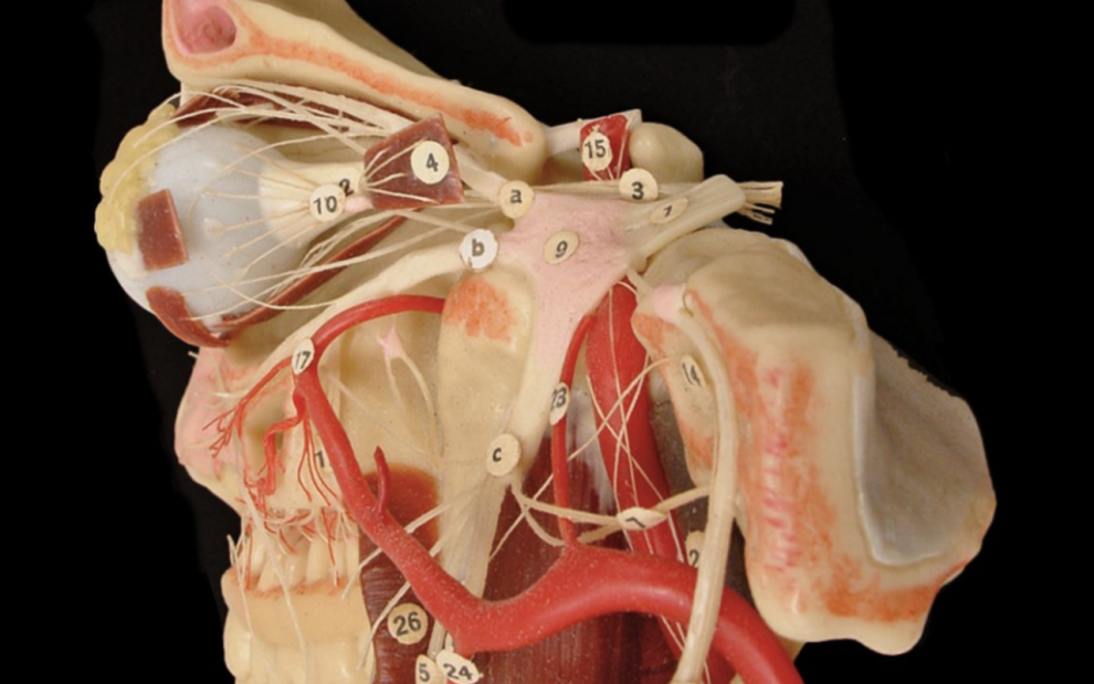 UG12, 'Wax Anatomical Model of Head and Neck'