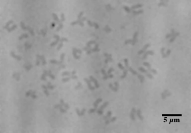 X-ray imaging of human chromosomes