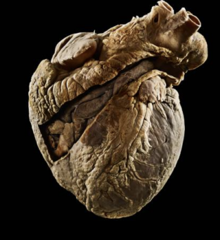 A preserved heart from the UCL Pathology Museum, Illustrating a diseased heart