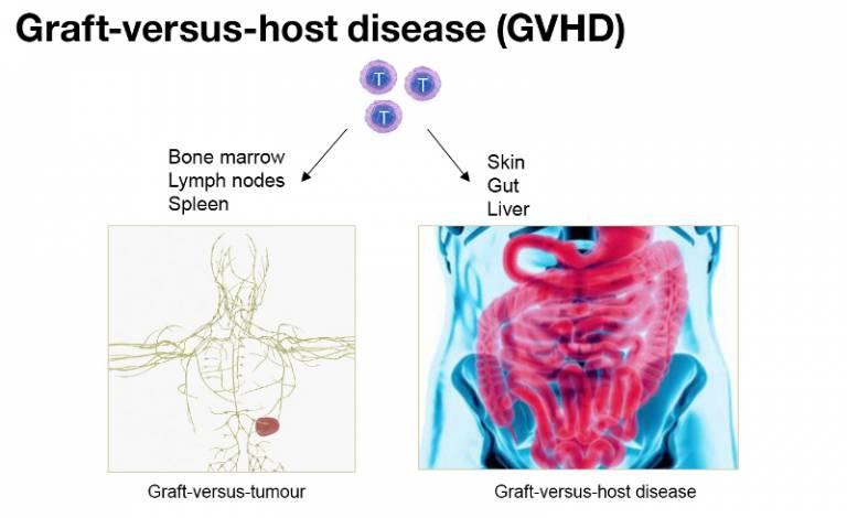 Graft-versus-host-disease