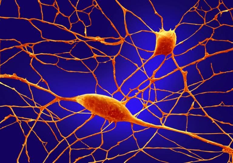 Purkinje neurons in culture