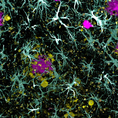 astrocytes surrounding amyloid plaques