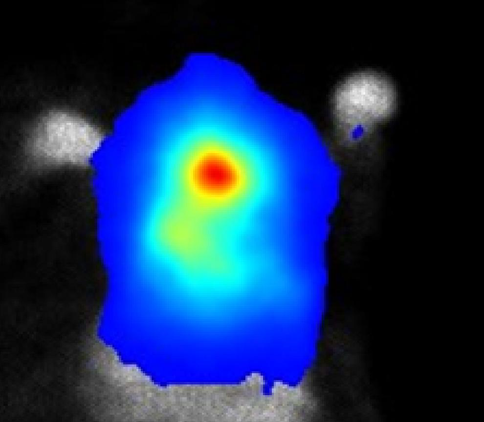 Bioluminescence Imaging