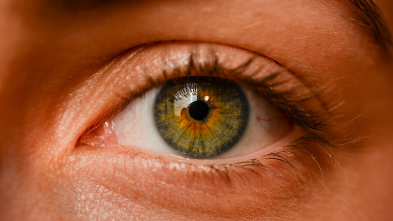 Researchers discover genetic processes that determine short-sightedness