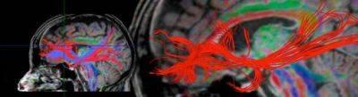 DN brain image