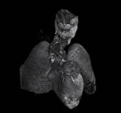 Postmortem microCT imaging of a fetal heart and lungs