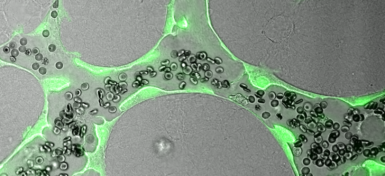 Researchers grow functioning blood vessels from scratch
