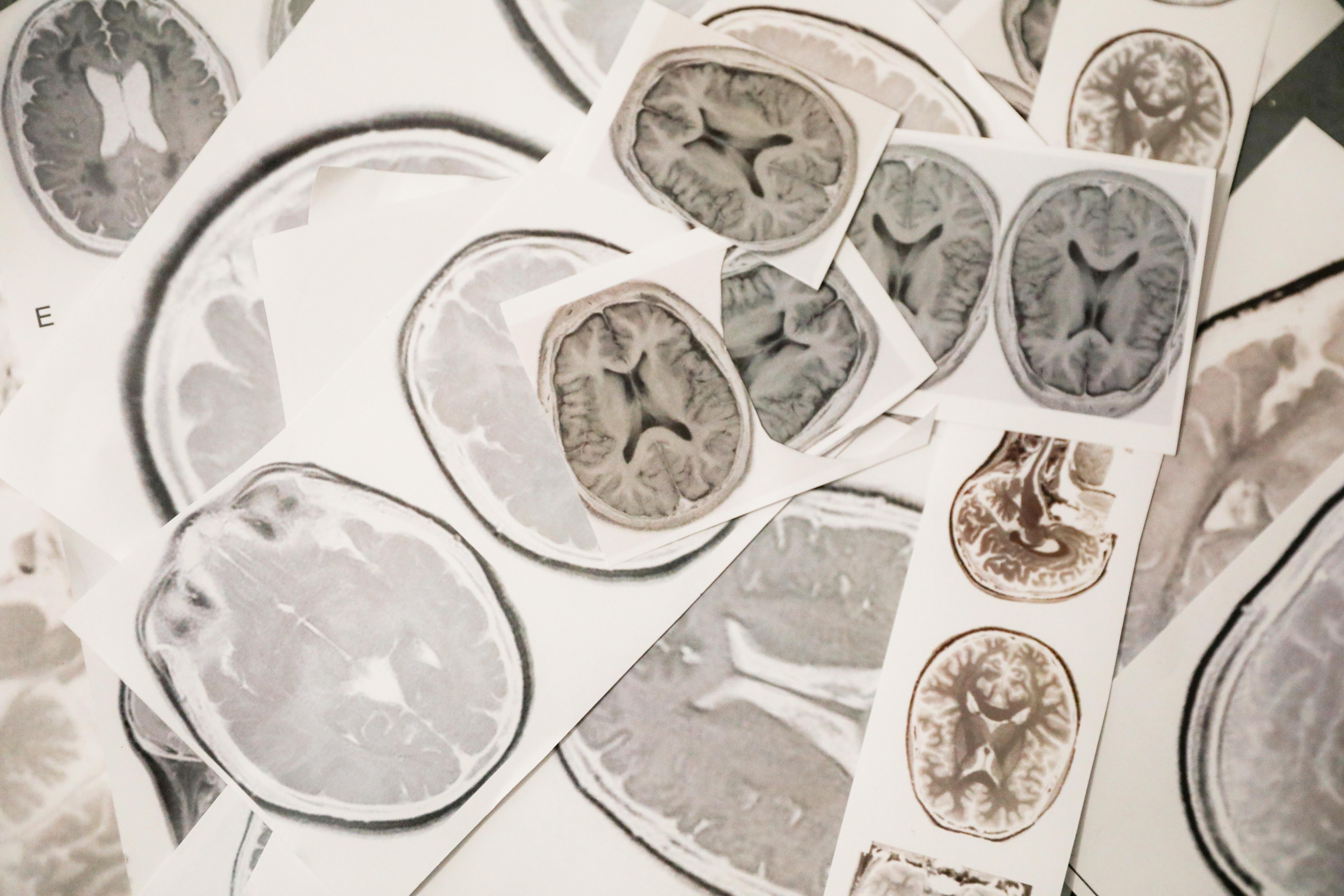 images of brains