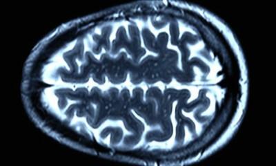 A landmark trial for Huntington's disease