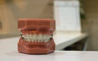 Oral Health and Perfomance image