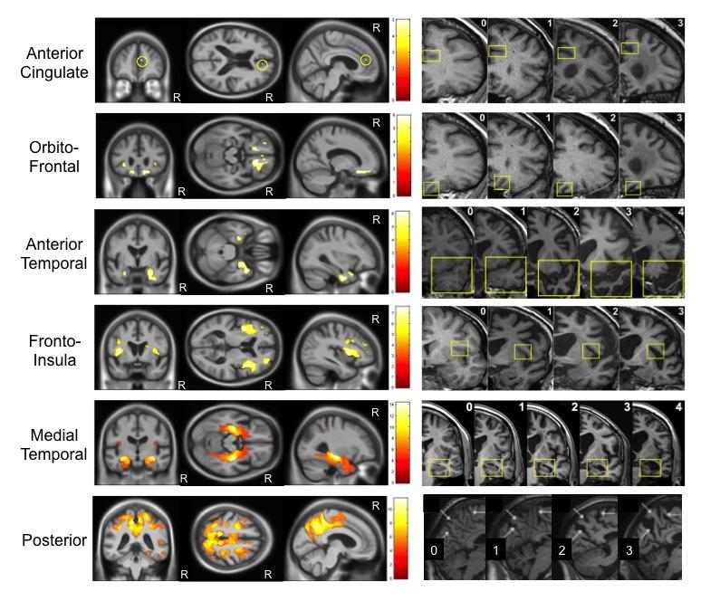 brain harper visual rating
