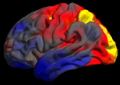 Brain showing difference between AD and PCA…