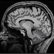 Posterior Cortical Atrophy scan