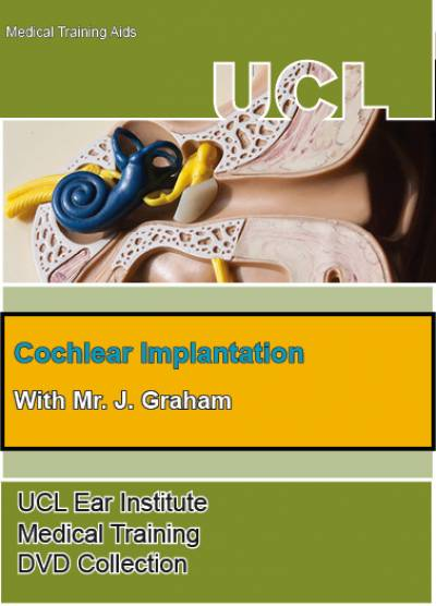 Cochlear Implants…