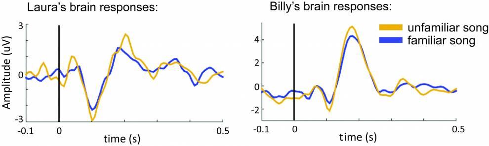 EEG results [1]:…