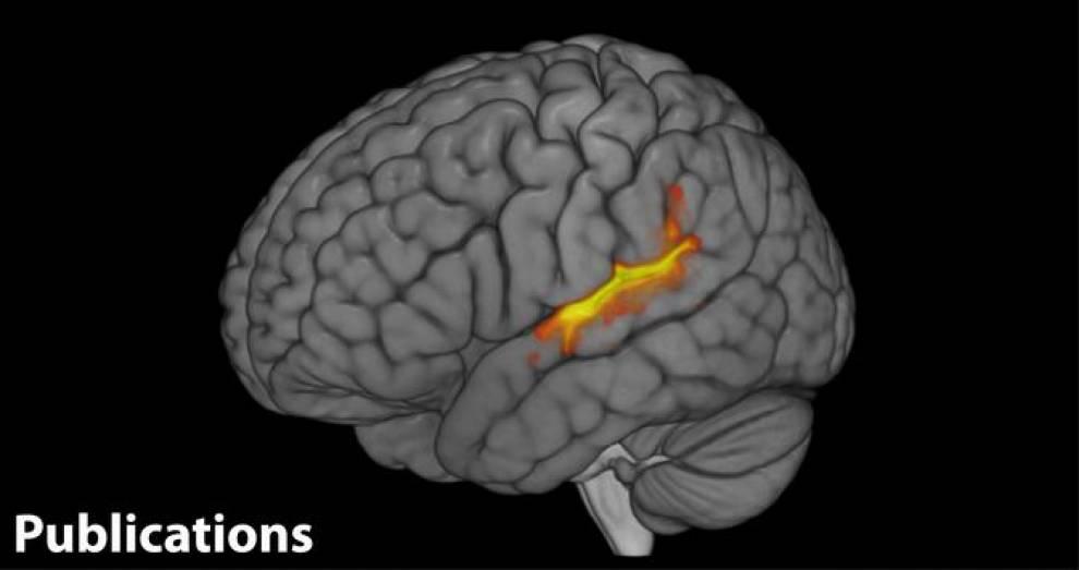 auditory cortex on fire…