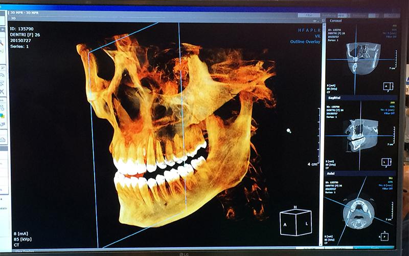 digital scan of skull