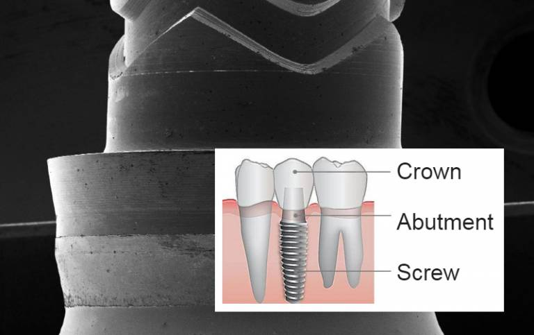 Dental implant structure and close up