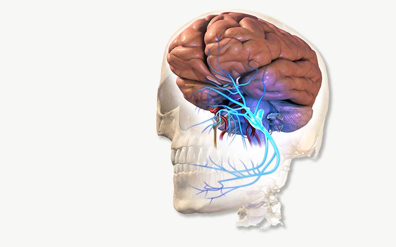 Trimgeminal Neuralgia
