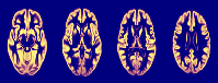 EPSRC Centre for Doctoral Training in Medical Imaging