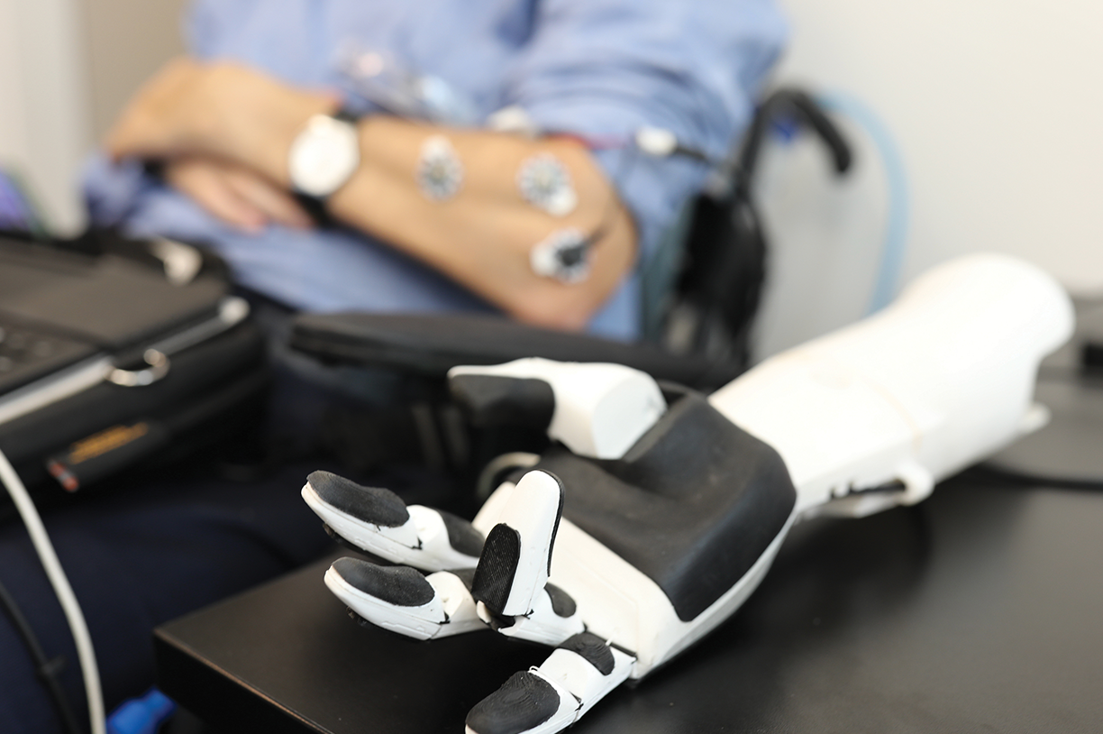 Rehabilitative & assistive technologies research | robotic prosthetic arm