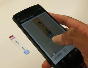 Mobile HIV test