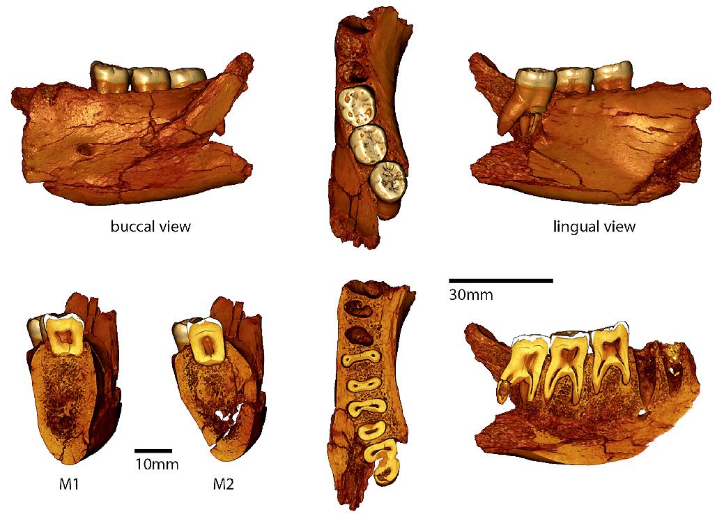 Balanica Teeth