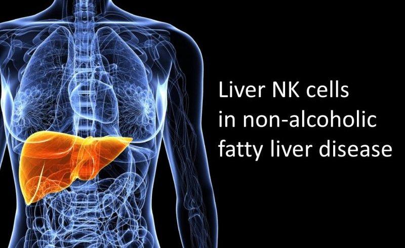 Liver NK