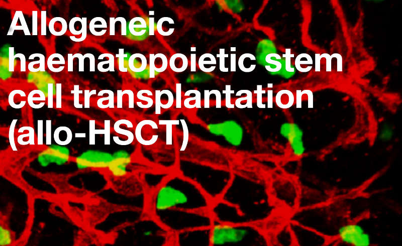 Allogeneic haematopoietic stem cell transplantation