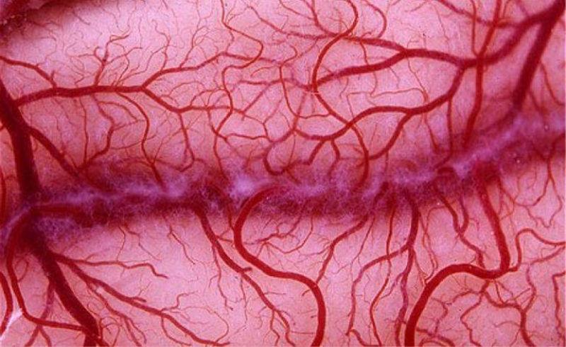 Microvascular