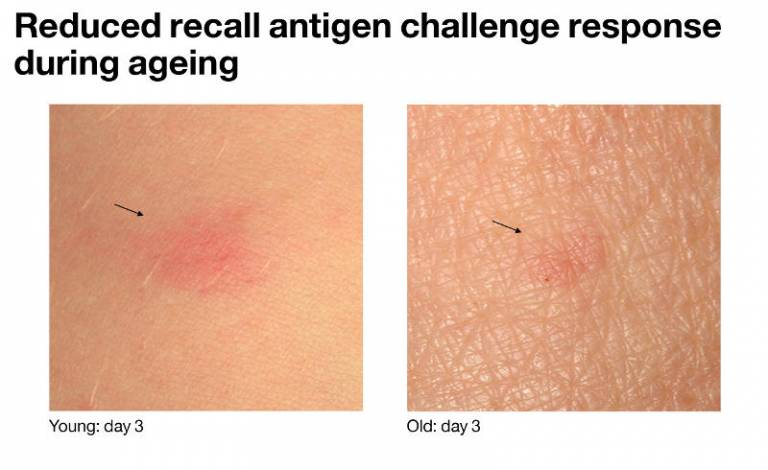 Reduced recall antigen challenge response during ageing