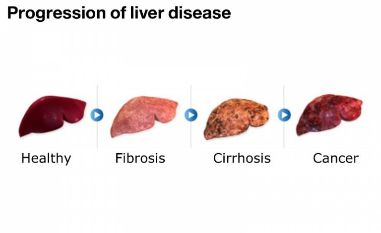 Image result for diagrams of diseased liver