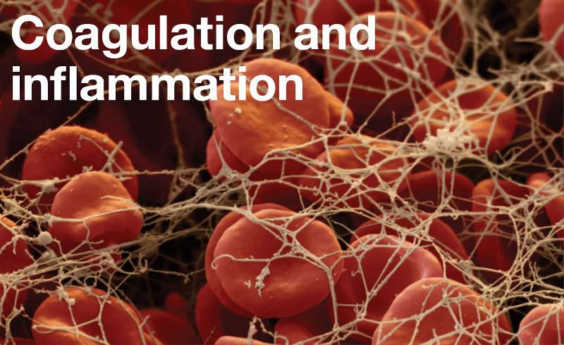 Coagulation and inflammation