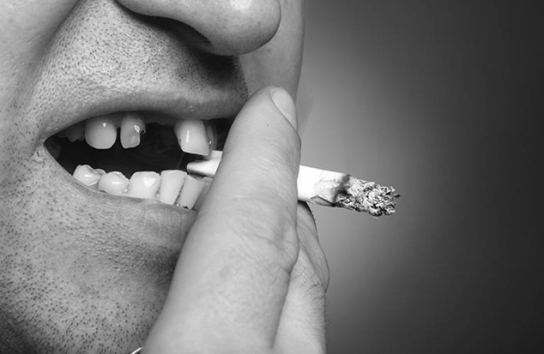 Man with bad teeth, smoking