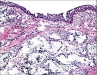 fibrosis skin layer