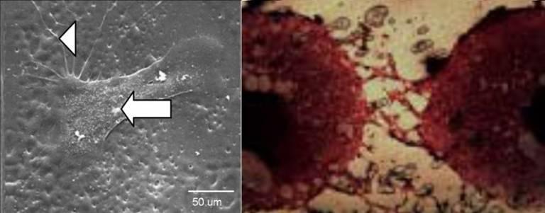 Human intestine cells.jpg