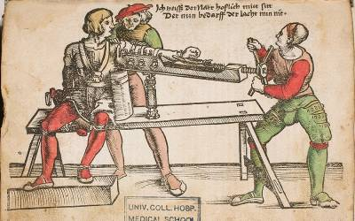 coloured illustration of military surgery, from von Gersdorff's handbook, dated 1530