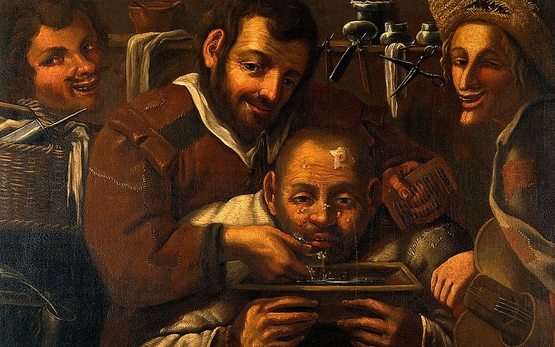 Painting of barber surgeons operating on a mans head, img credit Wellcome Trust