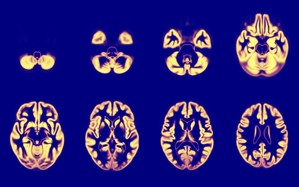 Imaging scans