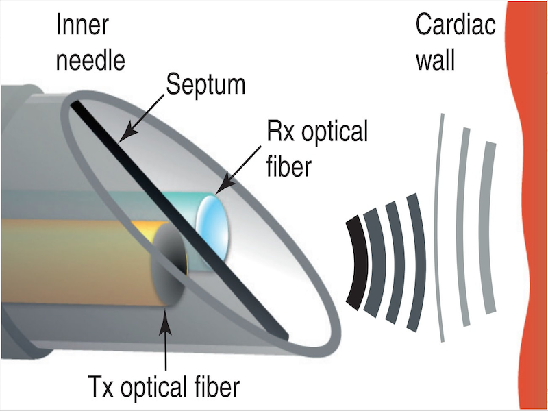 Interventional Devices
