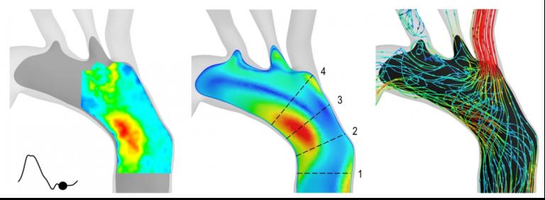 illustration of vascular blood vessel imaging