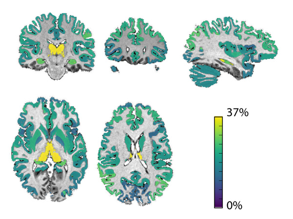 Brain areas with the strongest link between grey matter loss and risk of disability accumulation, with the thalamus shown in yellow