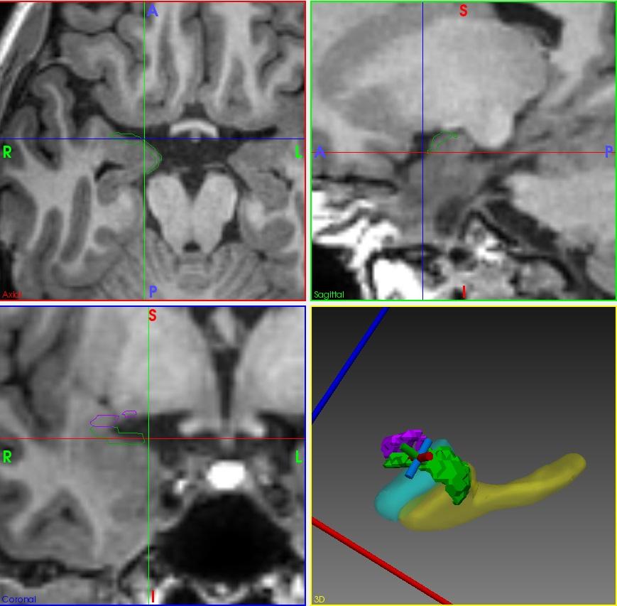 MRI epilepsy surgery
