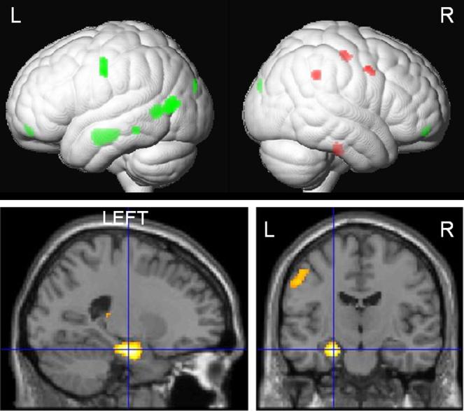 sidhu brain image
