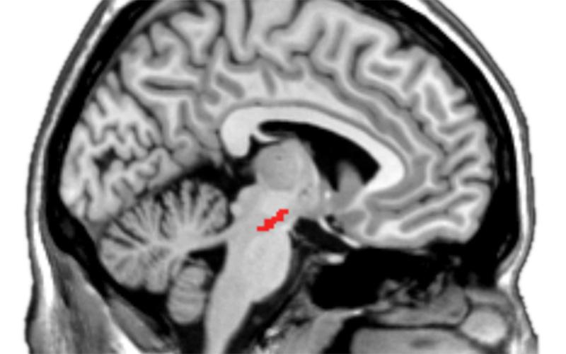 dopaminergic midbrain
