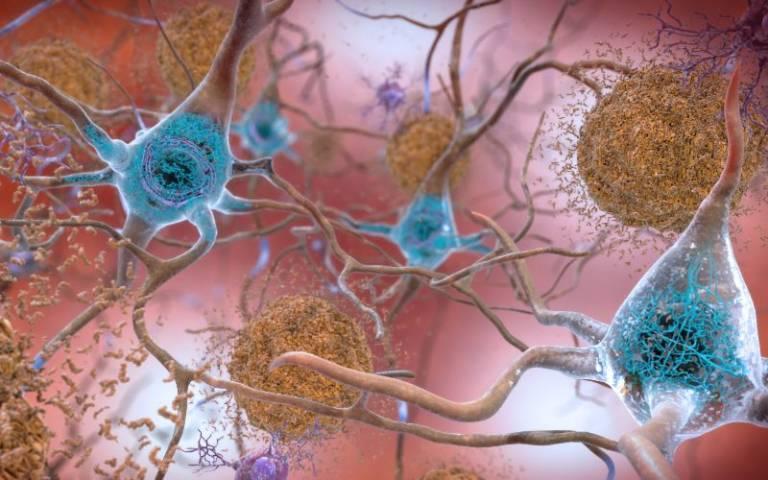 beta amyloid and tau
