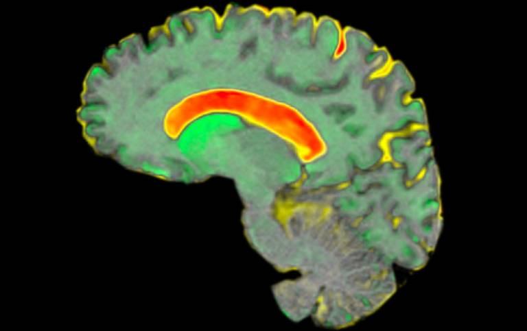 MRI scan of huntington's disease