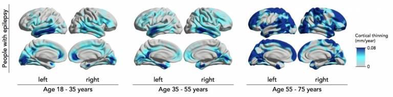 epilepsy and progressive atrophy graph