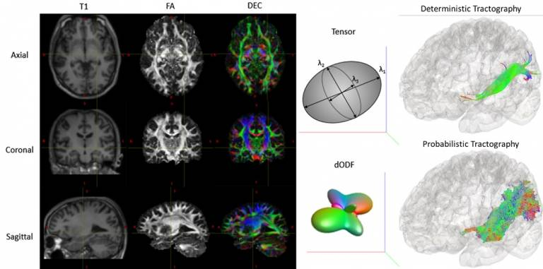 tractography
